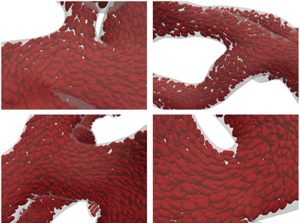Scalable Simulation of Realistic Volume Fraction Red Blood Cell Flows through Vascular Networks